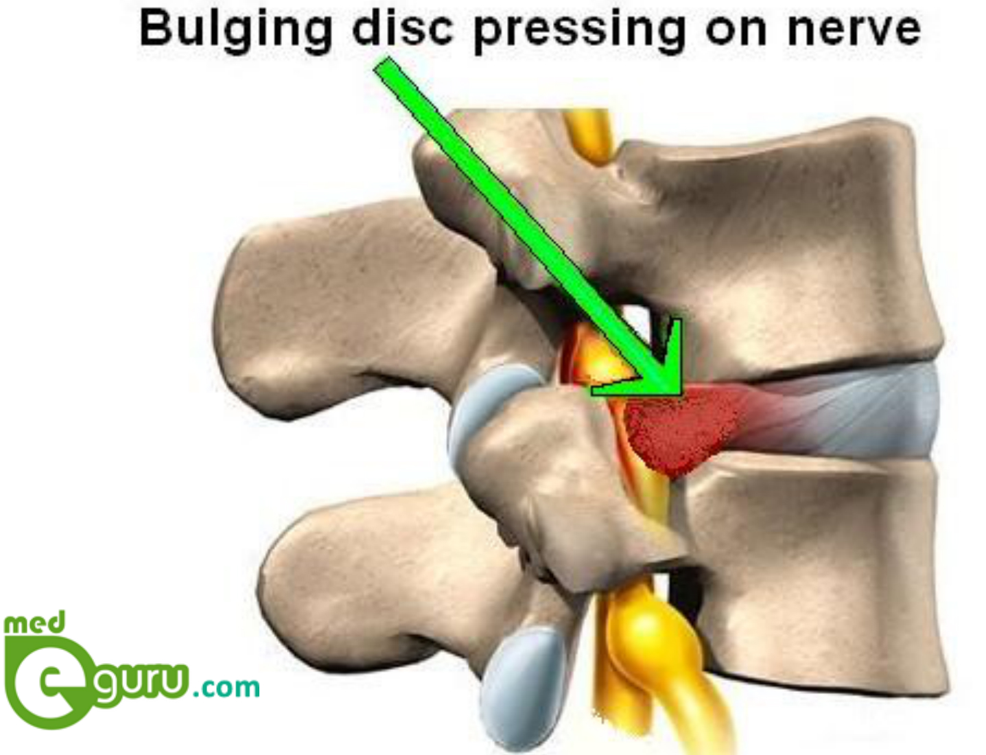 what is a bulged disk in lower back