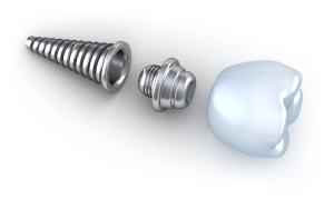dental-implants-technology-medeguru