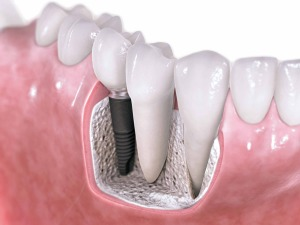 dental-tooth-implants