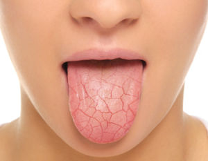 dry-mouth-syndrom-medeguru