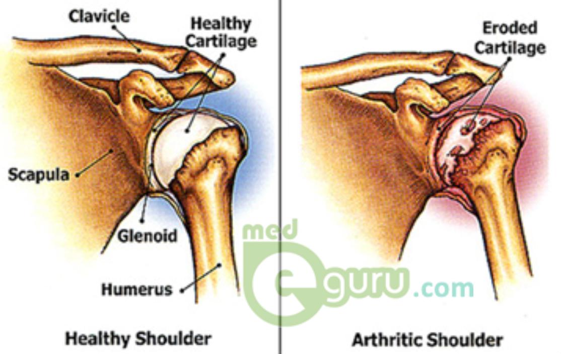 osteoarthritis in shoulder joint