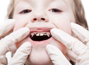 tooth-decay-medeguru
