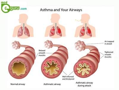 asthma diagram