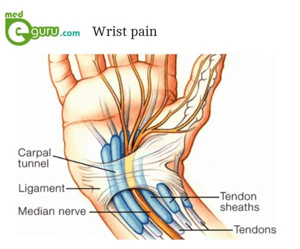 Wrist Pain Causes